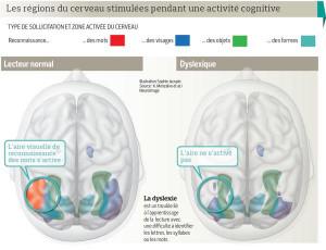 cerveau dyslexique