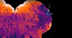 noyau-endorestiforme-cerveau-humain-750x400